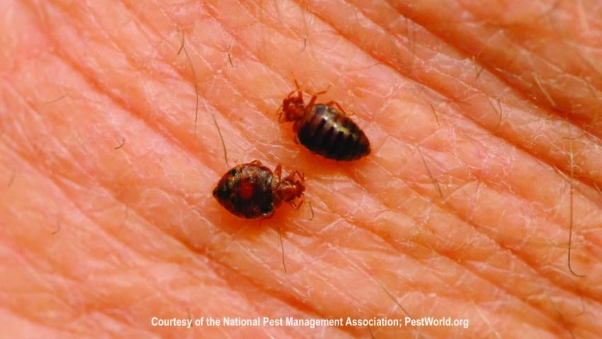 acaros o bedbugs