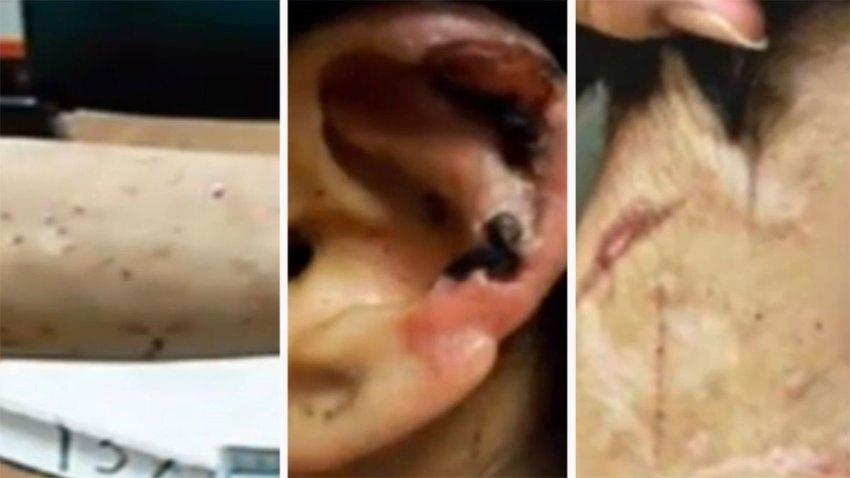 mujer-torturada