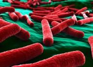 e-coli-que-es-4