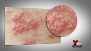 Herpes zóster en aumento en los Estados Unidos
