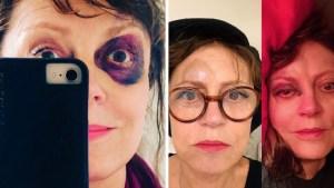 Susan Sarandon sufre contusiones tras aparatosa caída