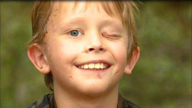 """[TLMD - NATL] """"Intenté clavarle un palo en el ojo"""": niño es atacado por un puma y vive para contarlo"""